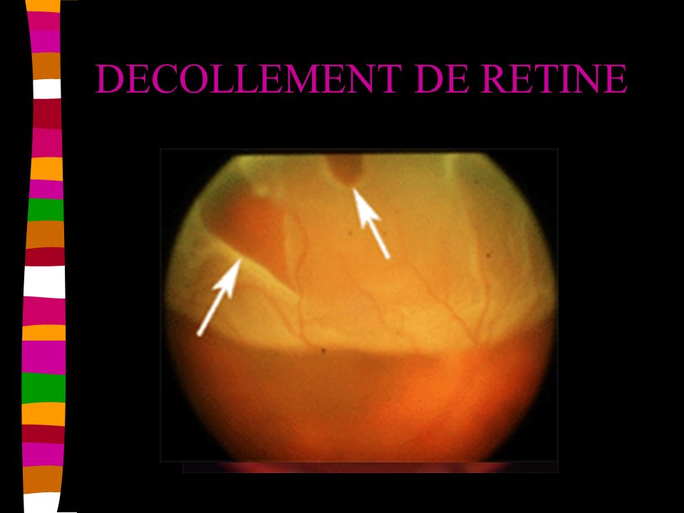 DECOLLEMENT DE RETINE