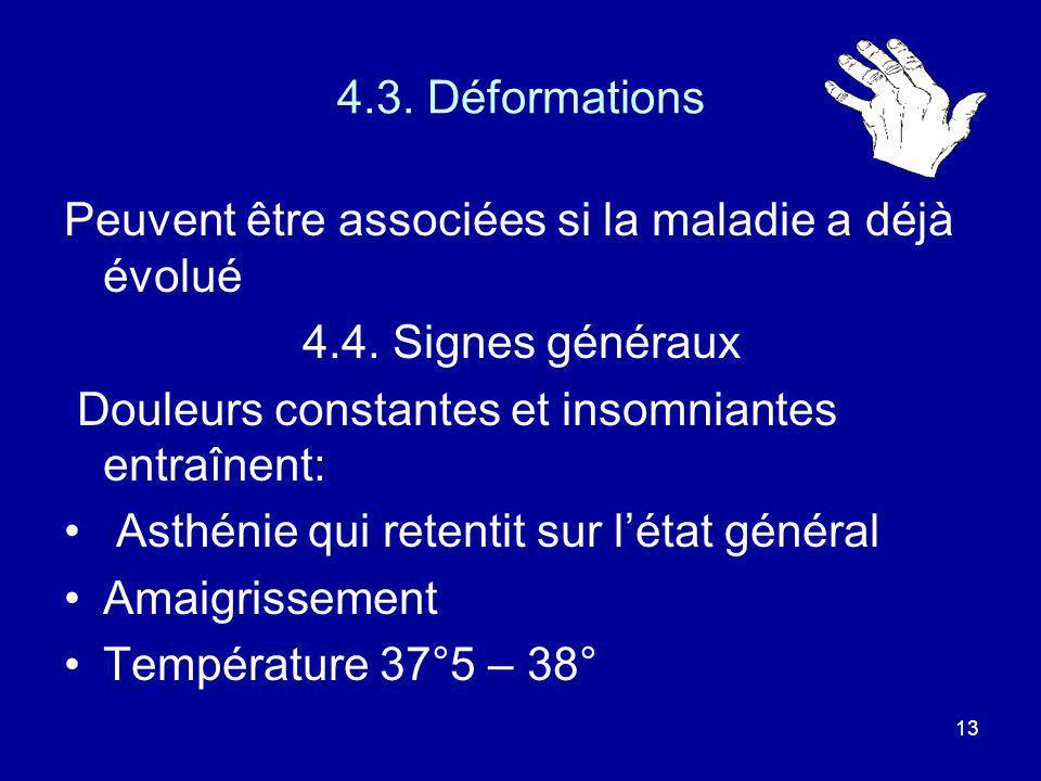 4.3. DéformationsPeuvent être associées si la maladie a déjà évolué. 4.4. Signes généraux. Douleurs constantes et insomniantes entraînent: