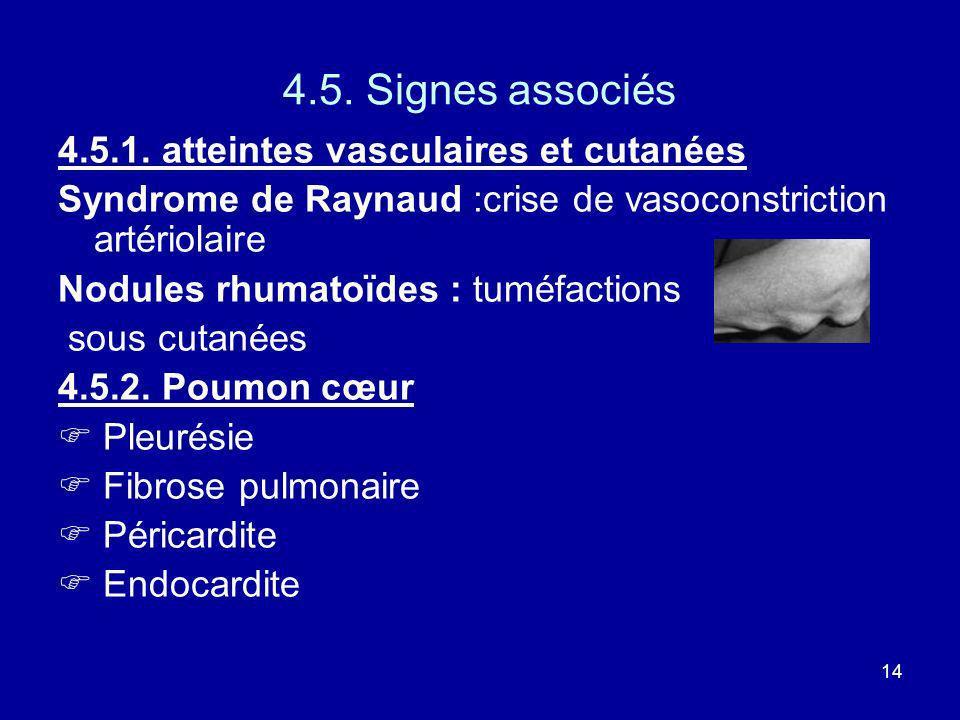 4.5. Signes associés 4.5.1. atteintes vasculaires et cutanées