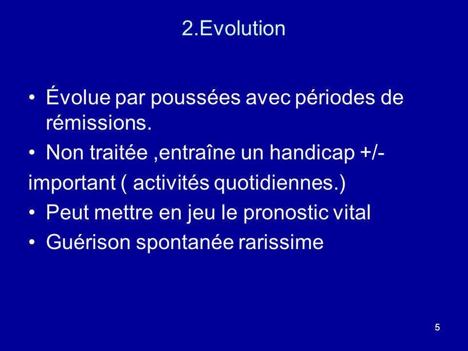 2.EvolutionÉvolue par poussées avec périodes de rémissions. Non traitée ,entraîne un handicap +/- important ( activités quotidiennes.)