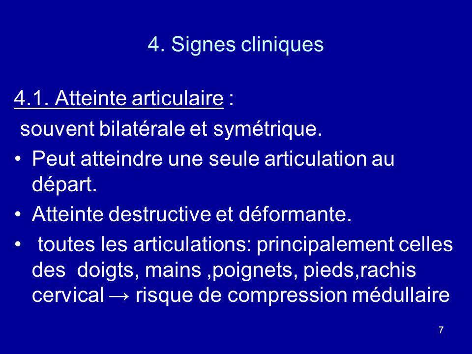 4. Signes cliniques4.1. Atteinte articulaire : souvent bilatérale et symétrique. Peut atteindre une seule articulation au départ.