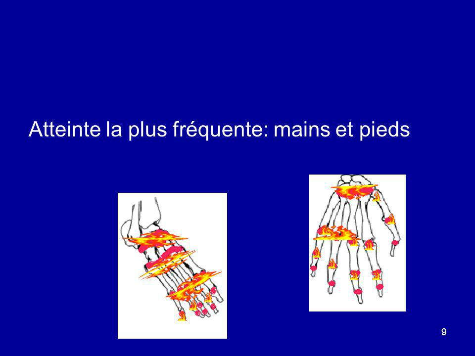Atteinte la plus fréquente: mains et pieds