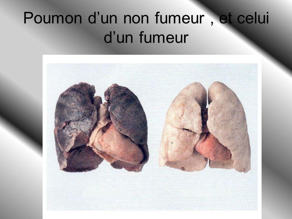 Poumon d'un non fumeur , et celui d'un fumeur
