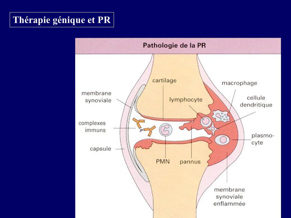 Thérapie génique et PR