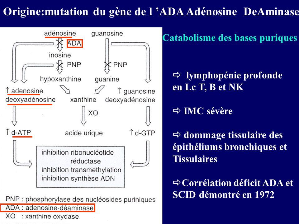 Origine:mutation du gène de l 'ADA Adénosine DeAminase