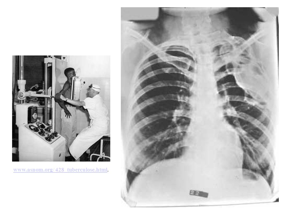 www.asnom.org/ 428_tuberculose.html.