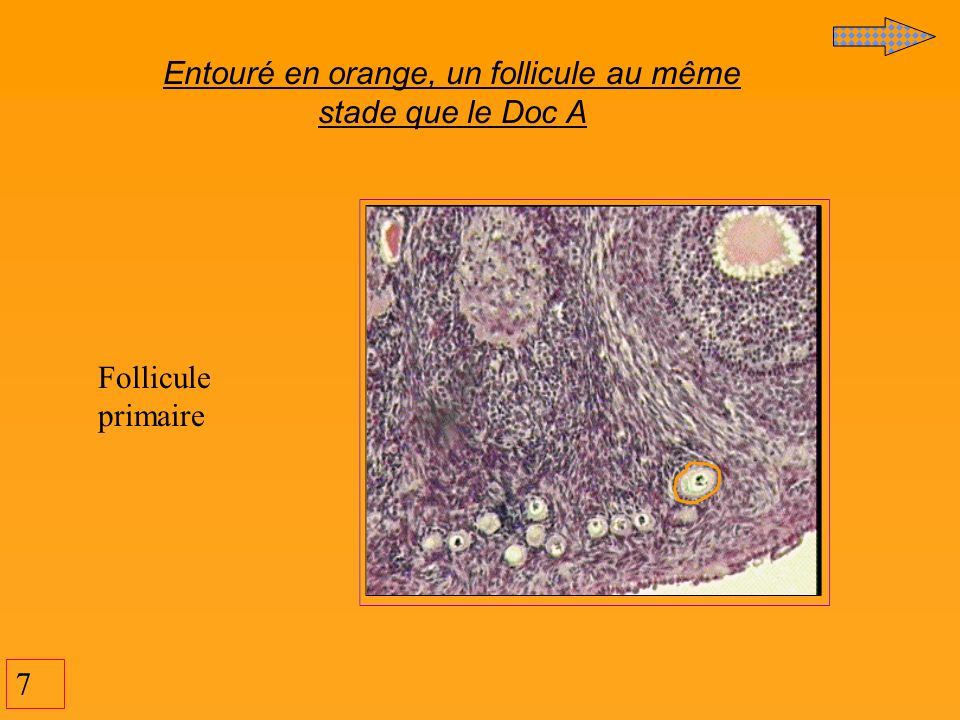 Entouré en orange, un follicule au même stade que le Doc A