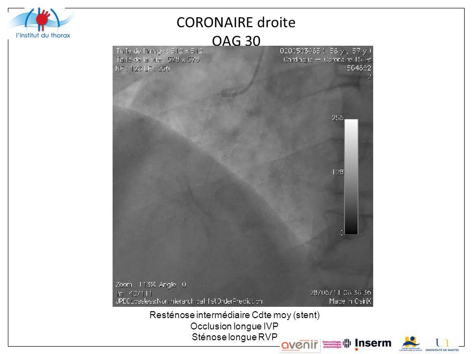 Resténose intermédiaire Cdte moy (stent)
