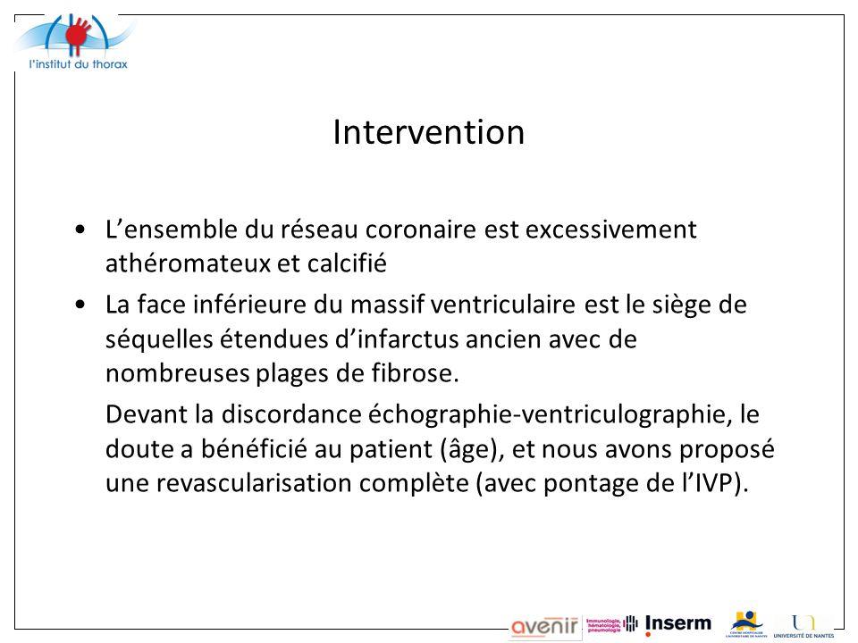 Intervention L'ensemble du réseau coronaire est excessivement athéromateux et calcifié.