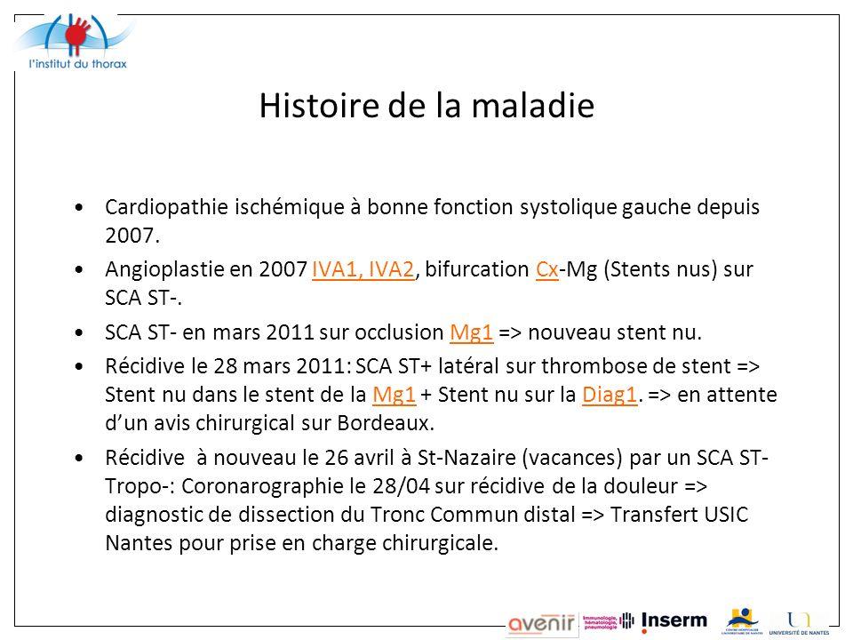 Histoire de la maladie Cardiopathie ischémique à bonne fonction systolique gauche depuis 2007.