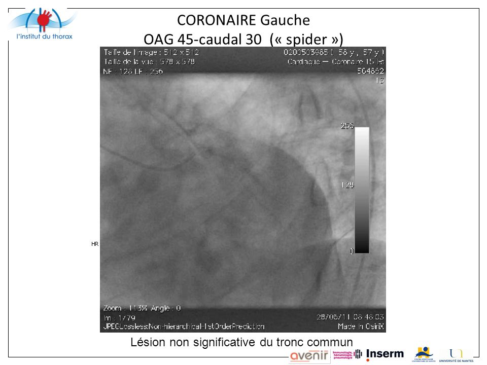 CORONAIRE Gauche OAG 45-caudal 30 (« spider »)