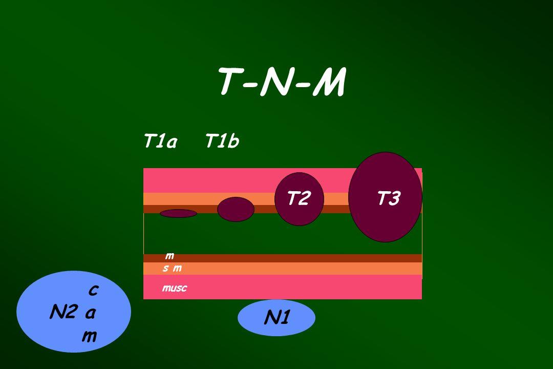 T-N-M T1a T1b T2 T3 m s m c N2 a m musc N1