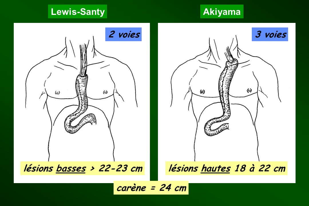 lésions basses > 22-23 cm