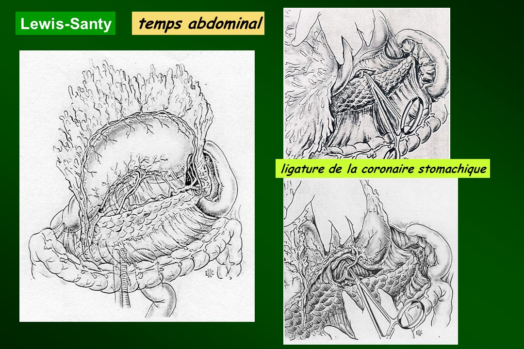 ligature de la coronaire stomachique