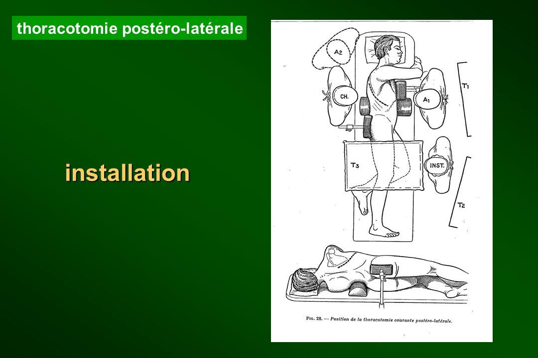 thoracotomie postéro-latérale