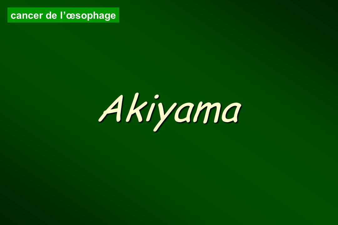 cancer de l'œsophage Akiyama