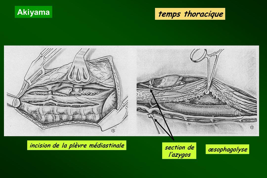 incision de la plèvre médiastinale