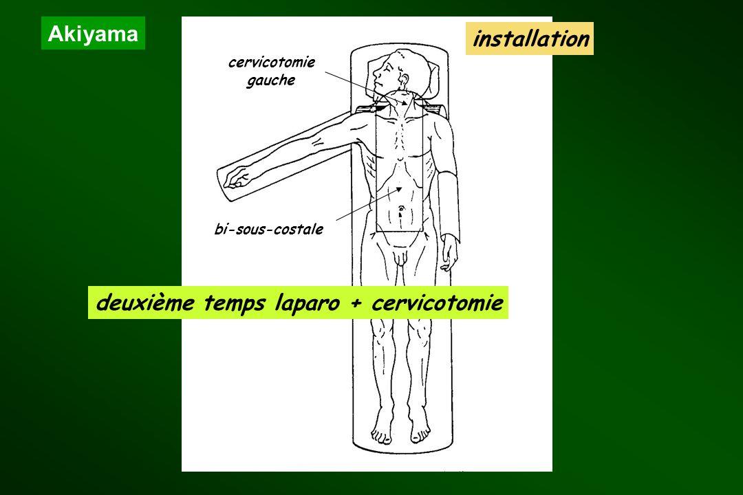 deuxième temps laparo + cervicotomie