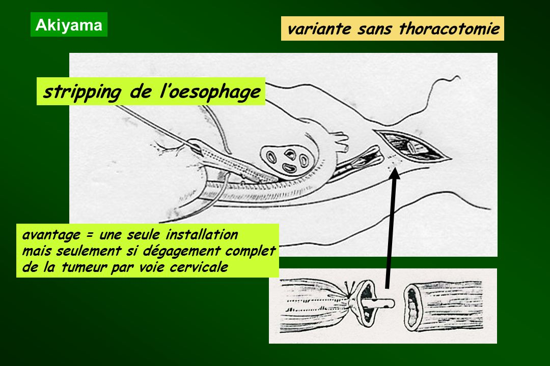 variante sans thoracotomie stripping de l'oesophage