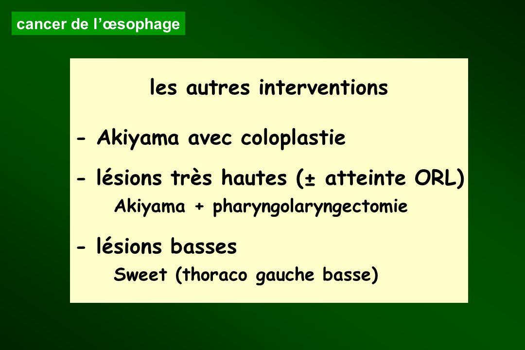 Akiyama + pharyngolaryngectomie Sweet (thoraco gauche basse)