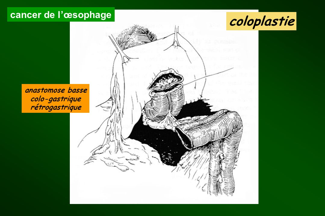 coloplastie cancer de l'œsophage anastomose basse colo-gastrique