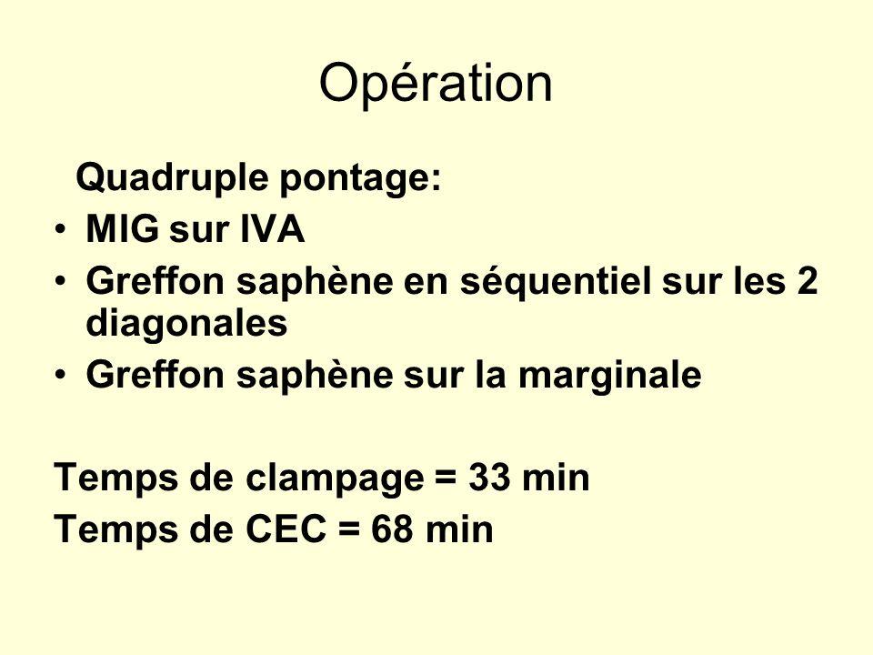 Opération Quadruple pontage: MIG sur IVA