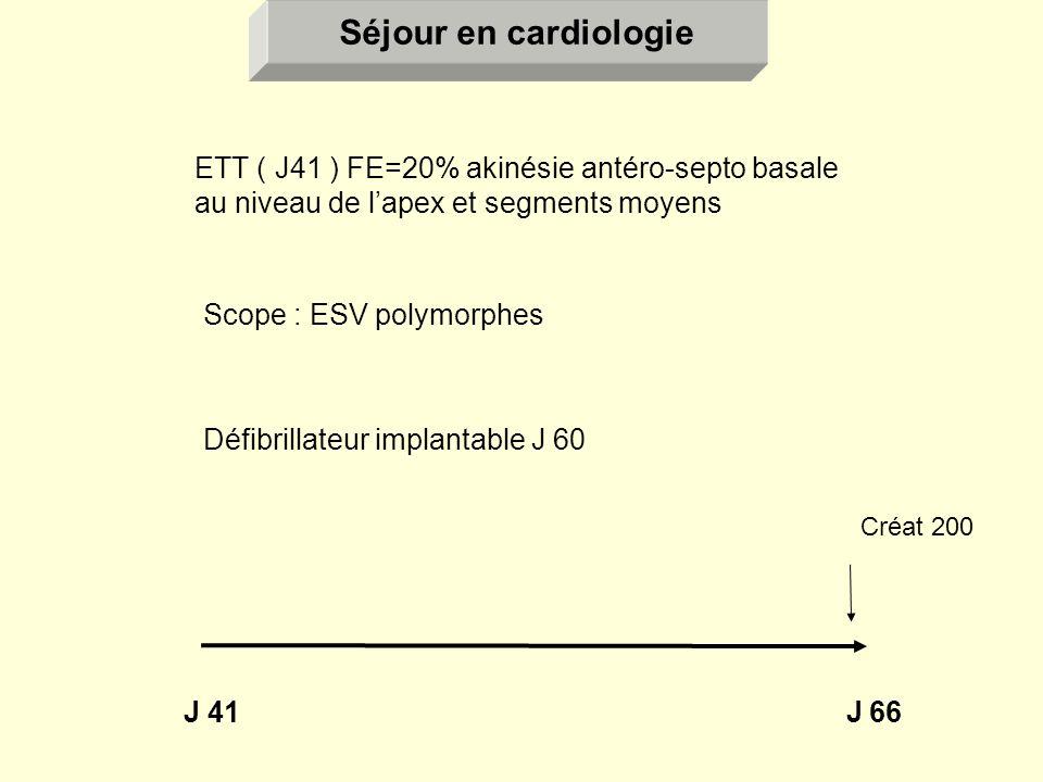 Séjour en cardiologie ETT ( J41 ) FE=20% akinésie antéro-septo basale au niveau de l'apex et segments moyens.