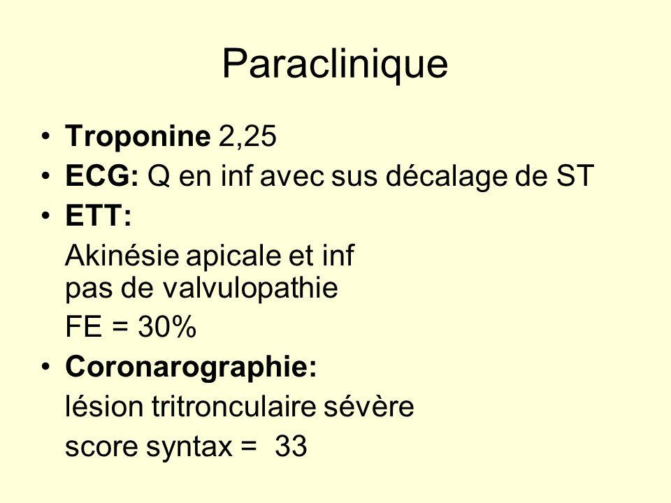 Paraclinique Troponine 2,25 ECG: Q en inf avec sus décalage de ST ETT: