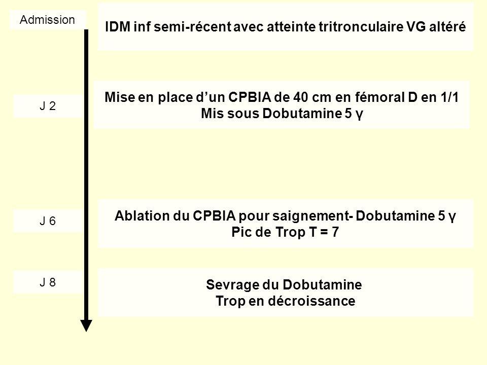 IDM inf semi-récent avec atteinte tritronculaire VG altéré