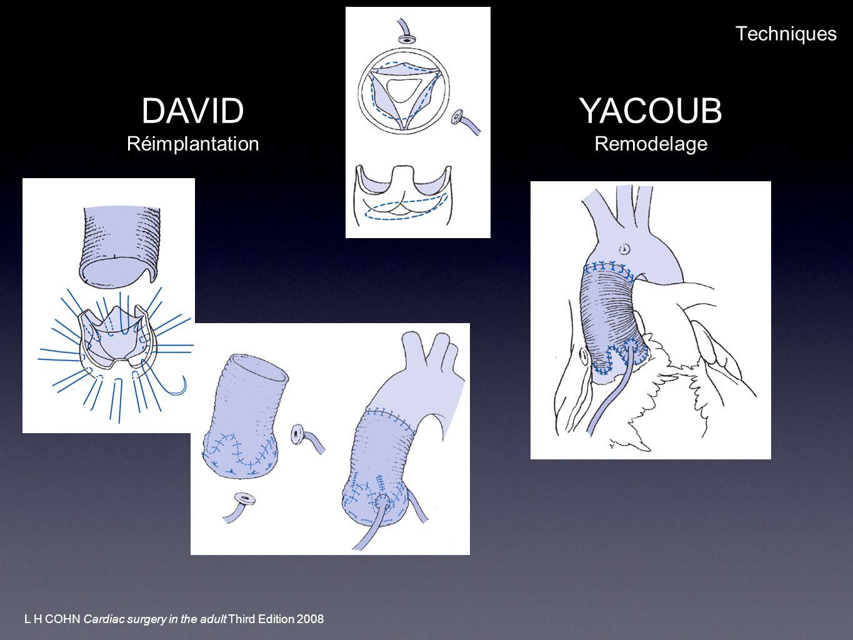 DAVID YACOUB Techniques Réimplantation Remodelage
