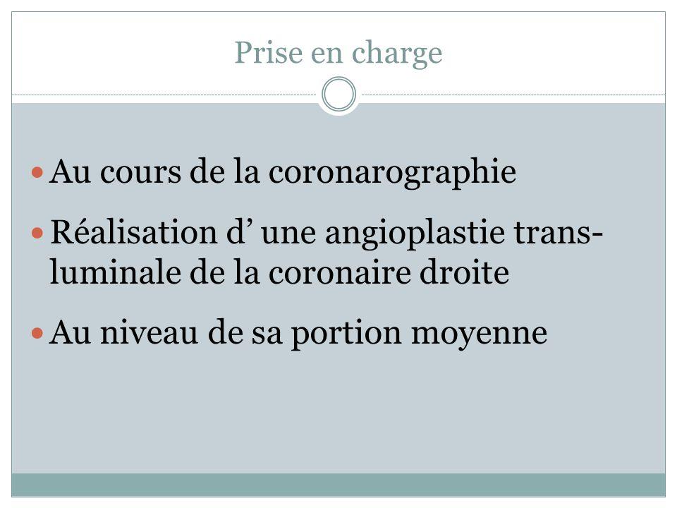 Au cours de la coronarographie