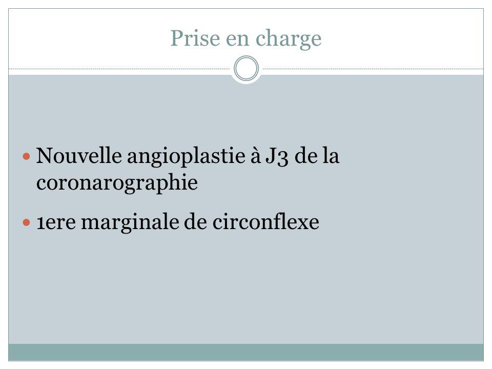 Prise en charge Nouvelle angioplastie à J3 de la coronarographie