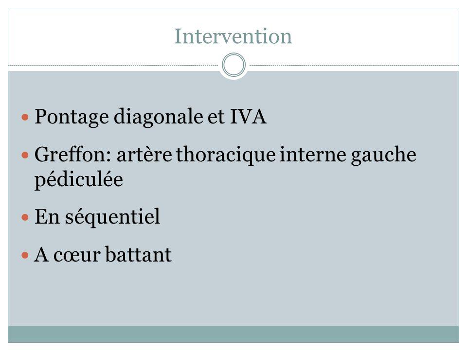 Intervention Pontage diagonale et IVA
