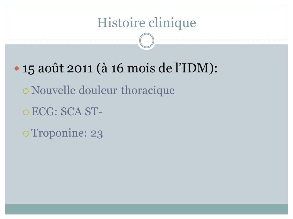 Histoire clinique 15 août 2011 (à 16 mois de l'IDM):