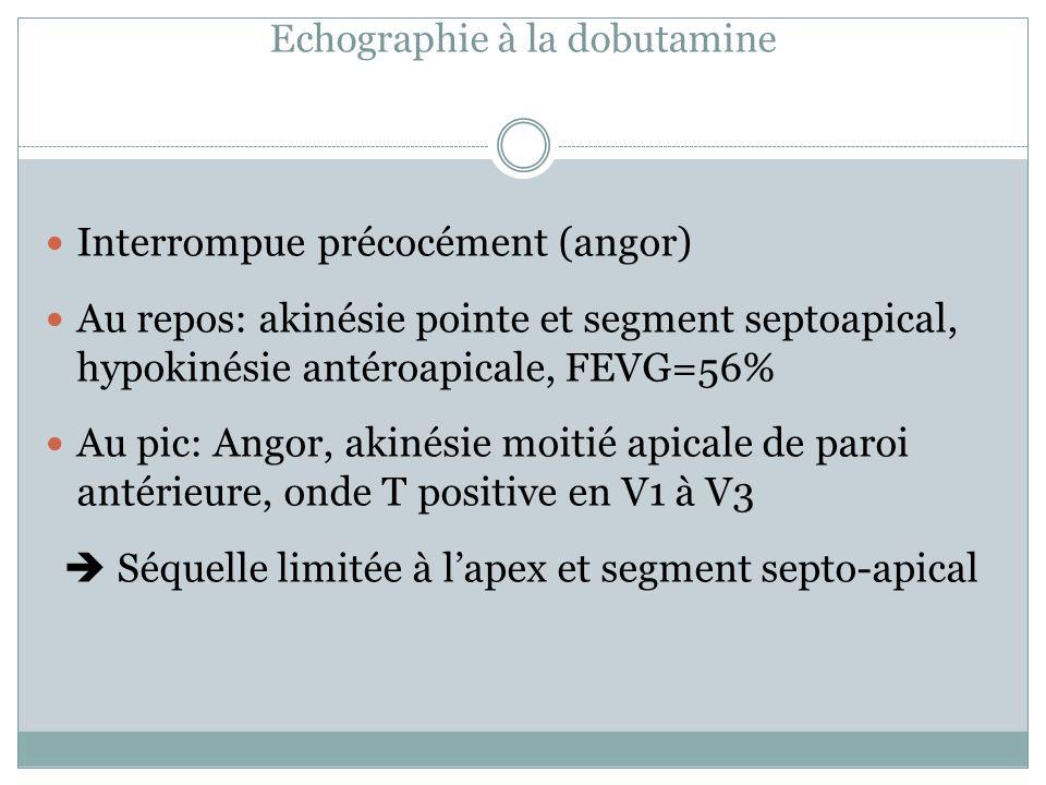 Echographie à la dobutamine
