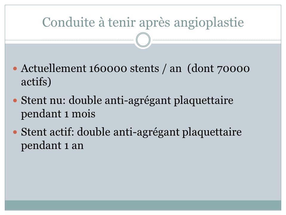 Conduite à tenir après angioplastie