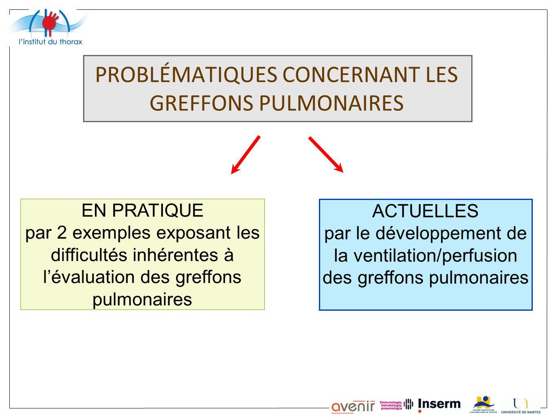 PROBLÉMATIQUES CONCERNANT LES GREFFONS PULMONAIRES