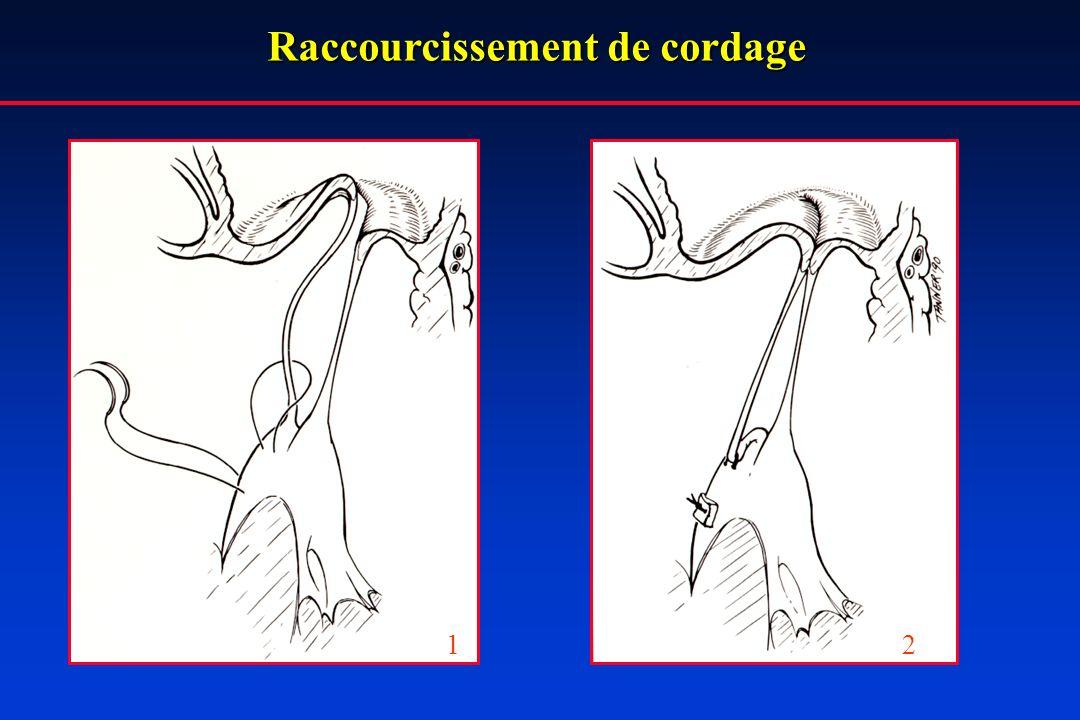 Raccourcissement de cordage