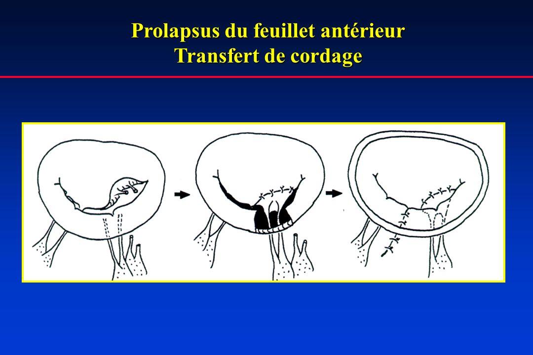 Prolapsus du feuillet antérieur