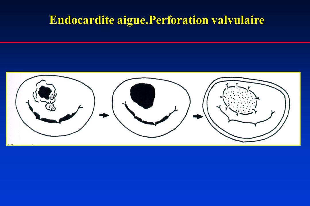 Endocardite aigue.Perforation valvulaire