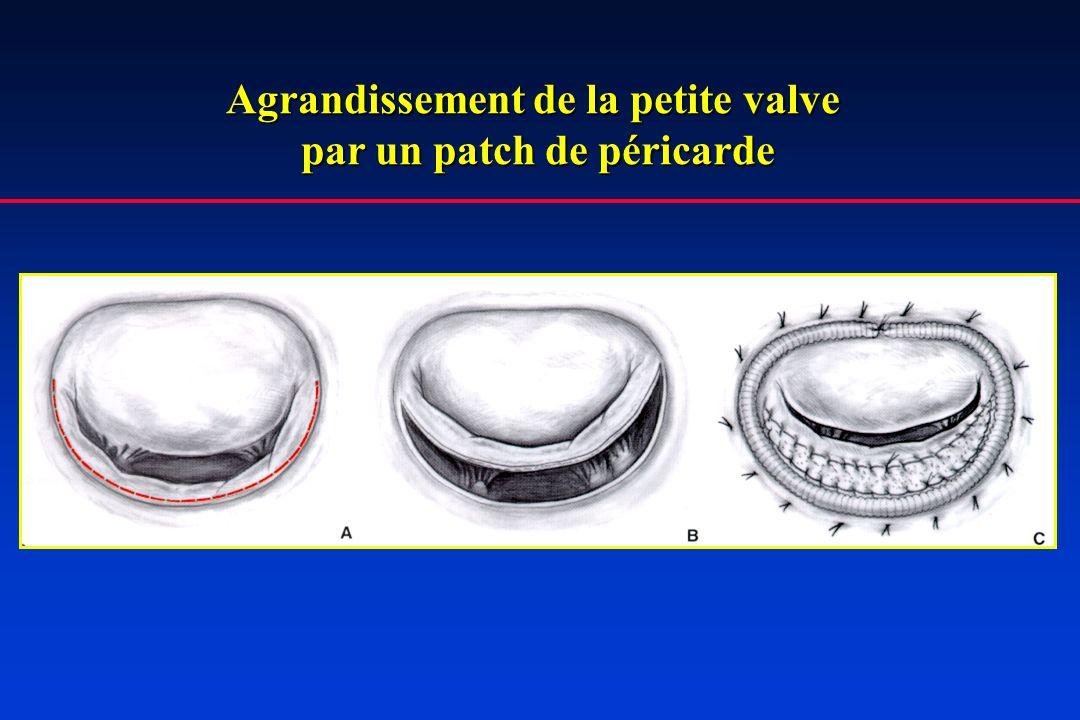 Agrandissement de la petite valve par un patch de péricarde