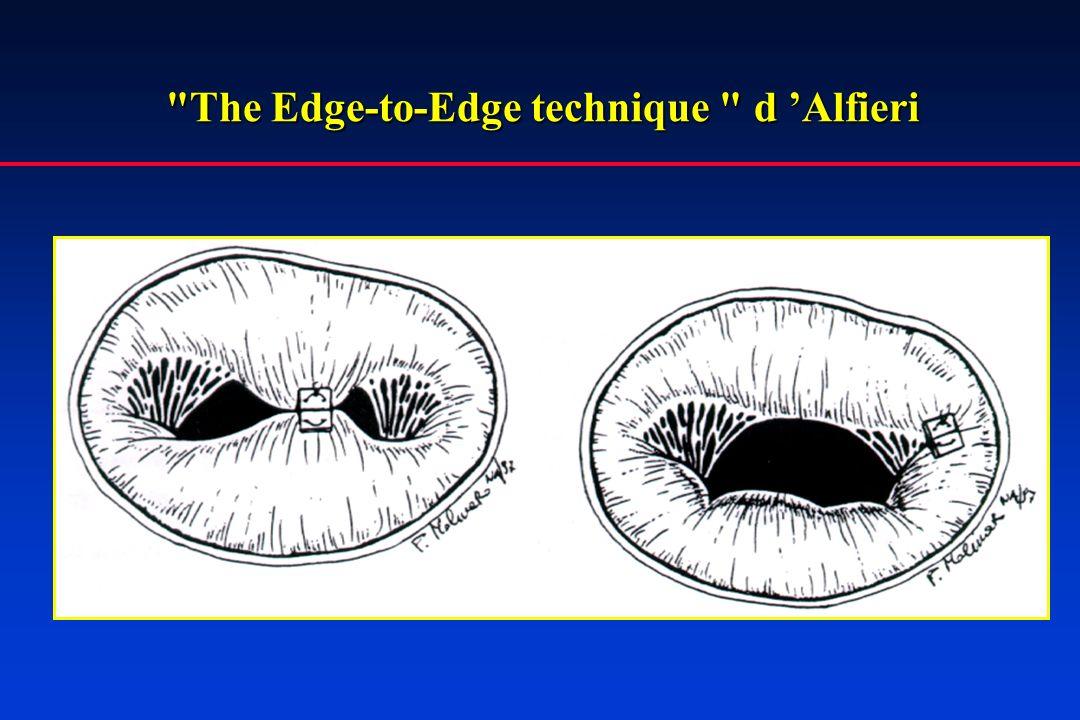 The Edge-to-Edge technique d 'Alfieri