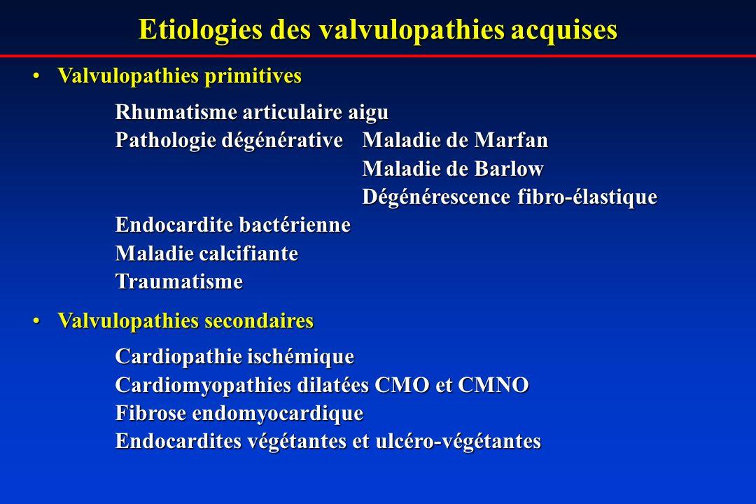 Etiologies des valvulopathies acquises