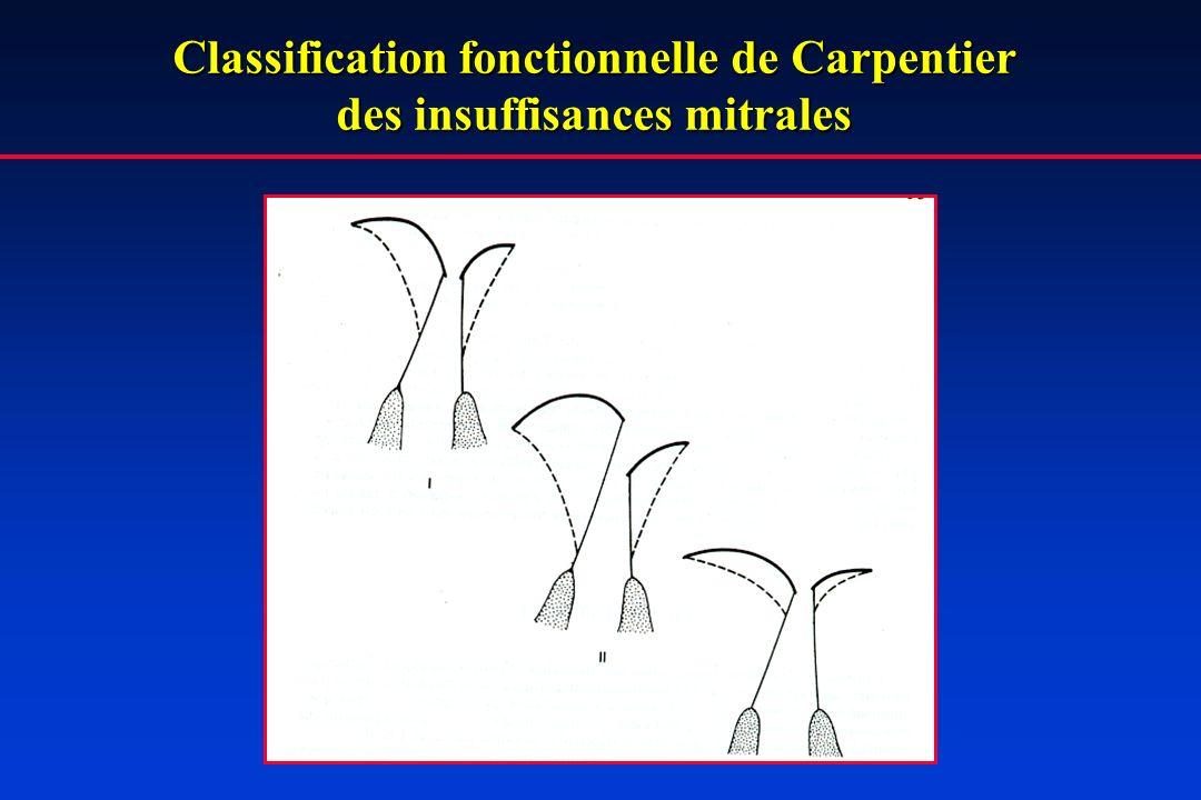Classification fonctionnelle de Carpentier des insuffisances mitrales
