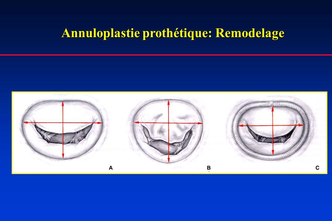 Annuloplastie prothétique: Remodelage