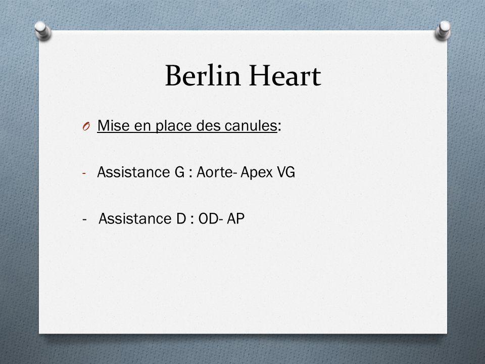 Berlin Heart Mise en place des canules: Assistance G : Aorte- Apex VG