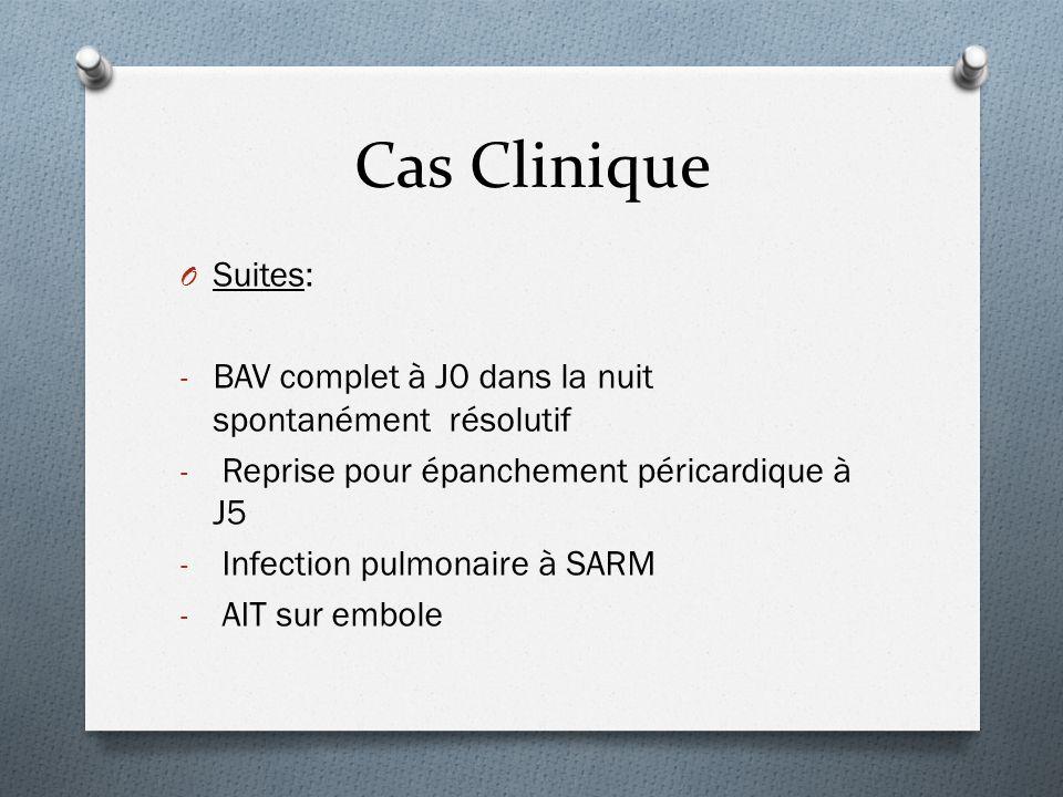 Cas Clinique Suites: BAV complet à J0 dans la nuit spontanément résolutif. Reprise pour épanchement péricardique à J5.