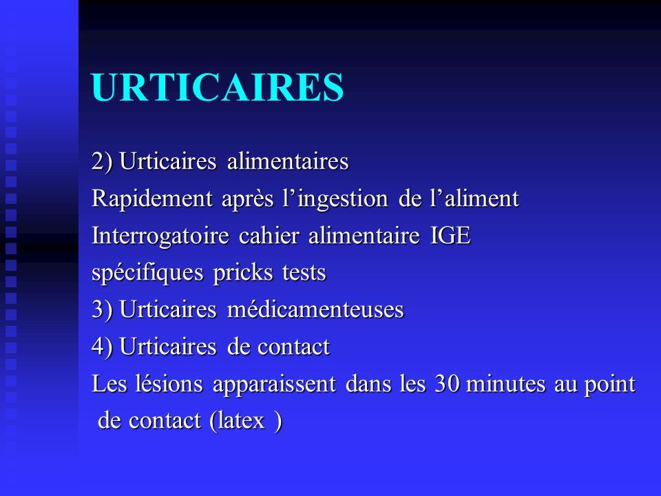 URTICAIRES 2) Urticaires alimentaires