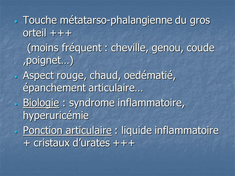 Touche métatarso-phalangienne du gros orteil +++