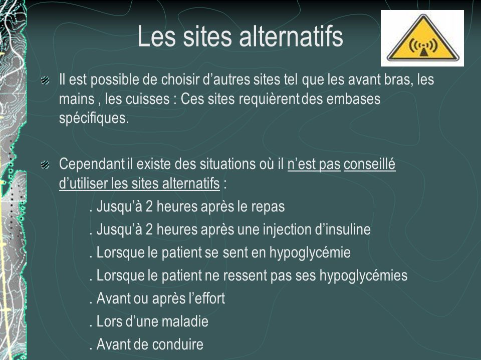 Les sites alternatifs